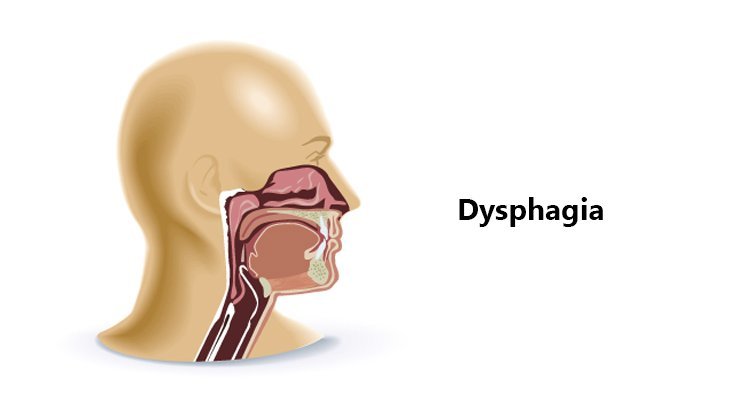 Specialist ENT CAUSES OF DYSPHAGIA