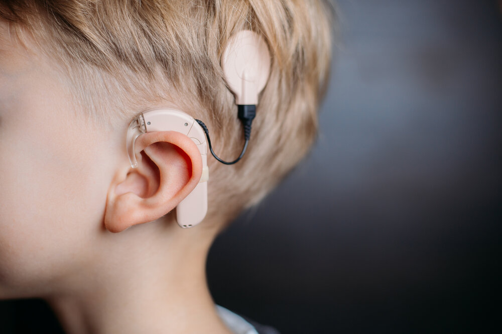 Specialist ENT COCHLEAR IMPLANTS
