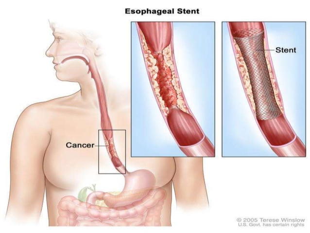 Specialist ENT OESOPHAGEAL STRICTURES