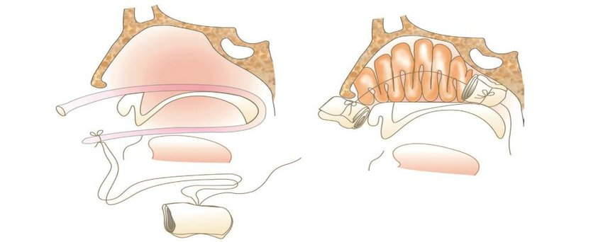 ENT Specialist POSTERIOR NASAL PACKING