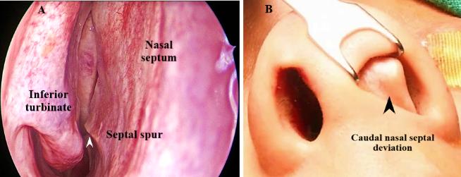 Specialist ENT Screenshot 2020 11 26 Ganpati nose docx2 1