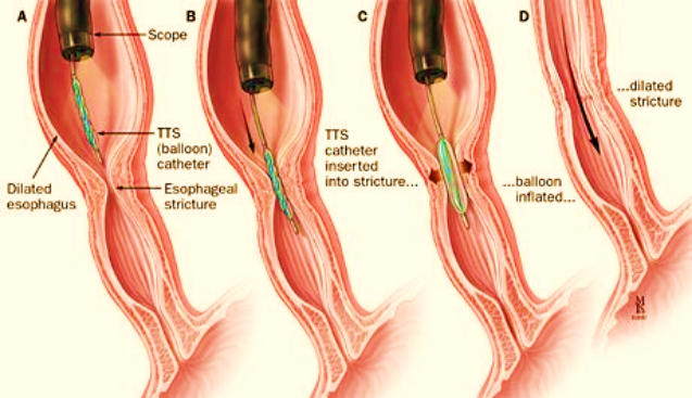 Specialist ENT Screenshot 2020 11 30 book oesophagus almost final2