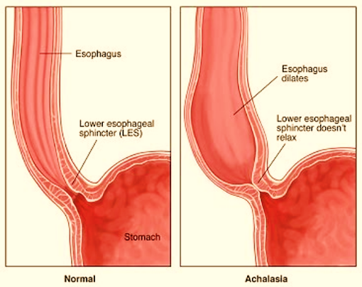 Specialist ENT Screenshot 2020 11 30 book oesophagus almost final4