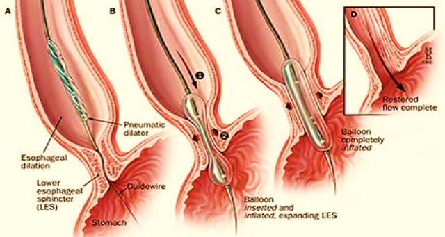 Specialist ENT Screenshot 2020 11 30 book oesophagus almost final7