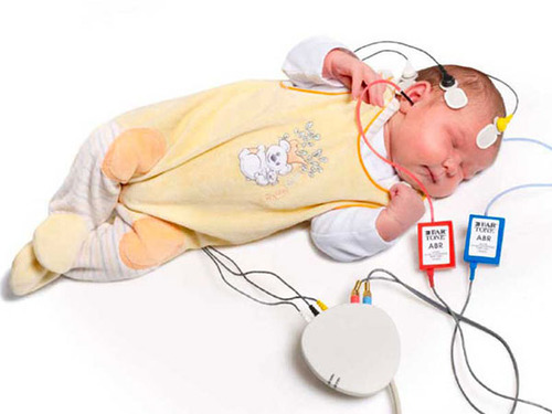 Specialist ENT bera hearing test 500x500 1