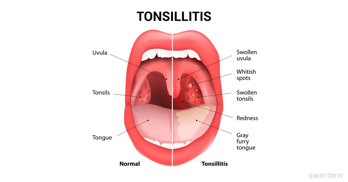 Specialist ENT TONSILLOLITH